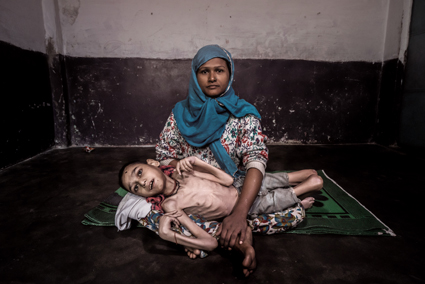 BHOPAL, INDIA: Sameer, 16 years old, held by his mother Wahida at home in the Jamalpura neighborhood.